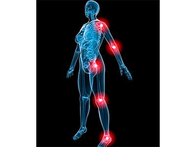 Schmerzen in der Schulter, Ellenbogen, Hüfte, Knie, Fuß