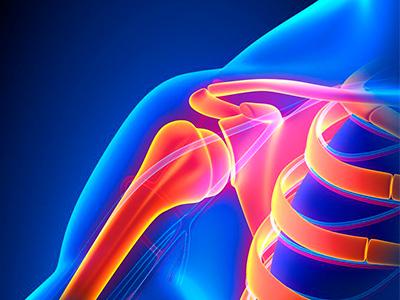 Schulterschmerzen, Schulterchirurgie