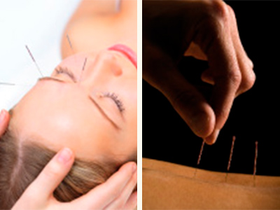 Akupunktur TCM