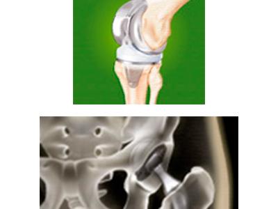 künstliches Hüftgelenk, künstliches Kniegelenk